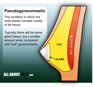 Pseudogynecomastia vs Gynecomastia – What's the Difference?